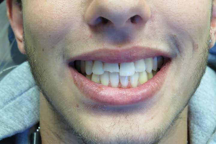Broken front tooth repaired chair side (composite) Before