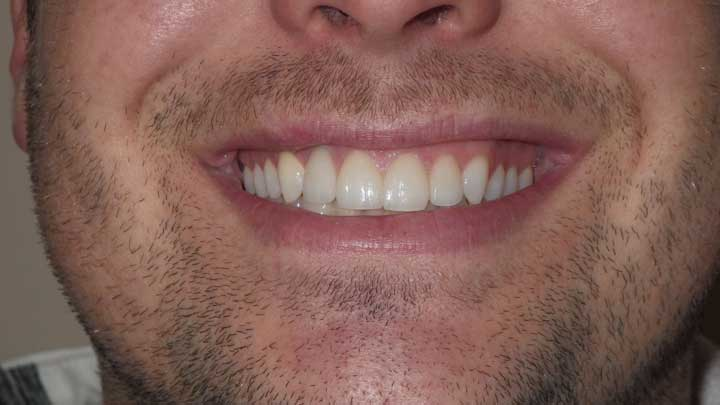 Fractured front tooth repaired with lab made crown After
