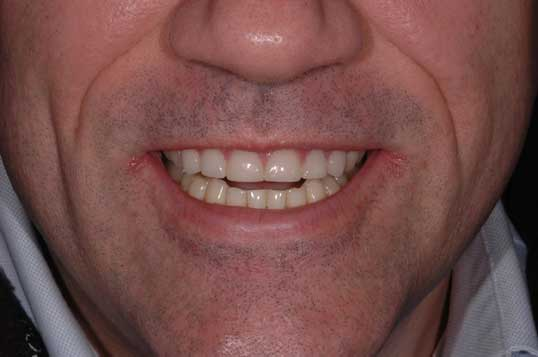 Jaw alignment and rebuild teeth after